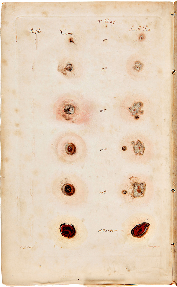 PRACTICAL OBSERVATIONS ON VACCINATION: OR INOCULATION FOR THE COW-POCK...EMBELLISHED WITH A COLOURED ENGRAVING, REPRESENTING A COMPARATIVE VIEW OF THE VARIOUS STAGES OF THE VACCINE AND SMALL-POX. John Redman Coxe.